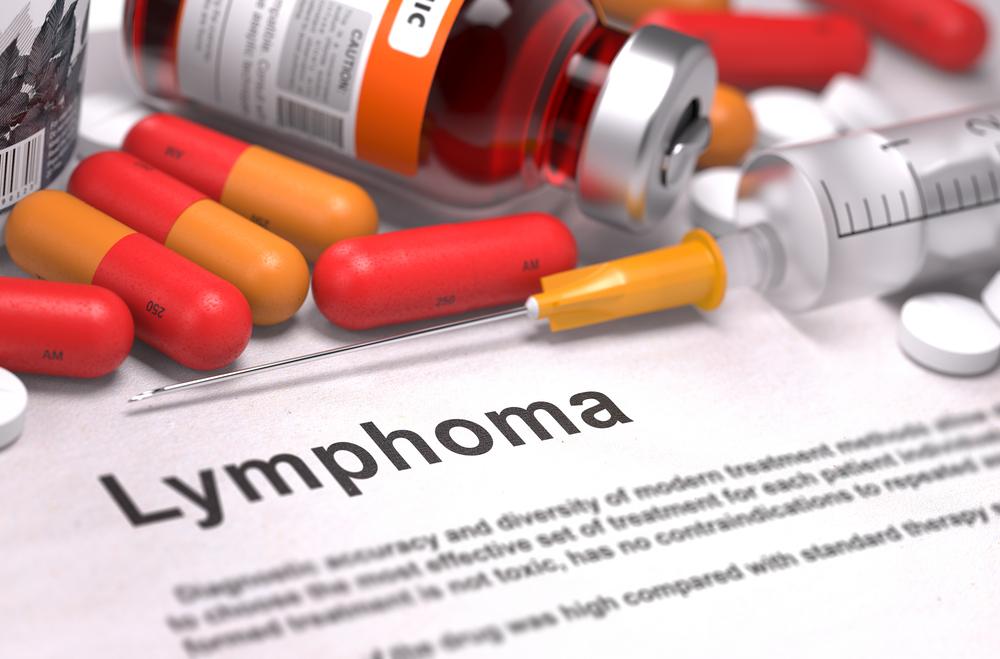 Linfoma: Una enfermedad con muchas caras